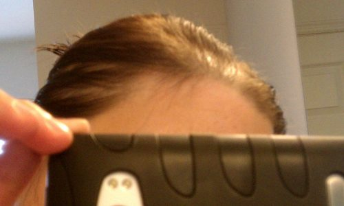 Spironolactone for Hair Loss