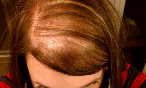 female hair loss