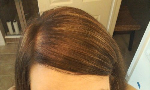 Volumizing Products for Thinning Hair