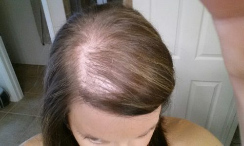 Pregnancy and Hair Loss