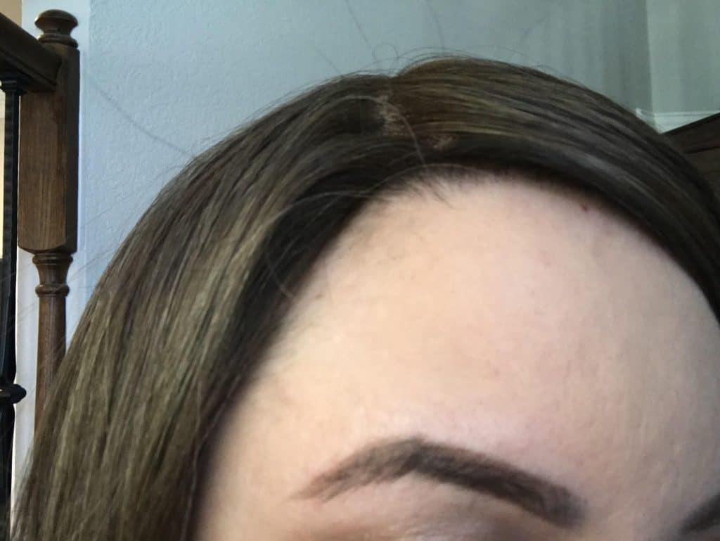 Thin Hair Thick Topper Rim